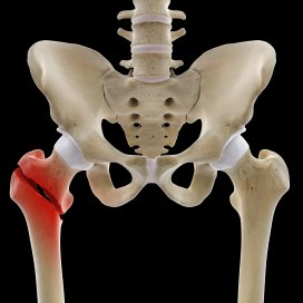 0_male_M_fracture_femur_intertrochanteric_PAIN_0004.jpg